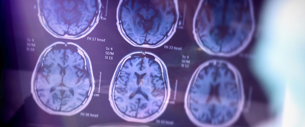 Ковид меняет объем серого вещества в мозге, надолго лишая дееспособности