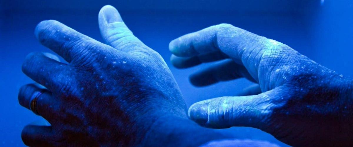 Ученые выяснили механизм зарождения экземы и псориаза
