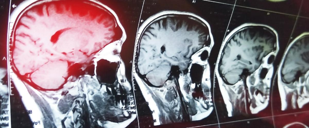 при сотрясении мозга диета